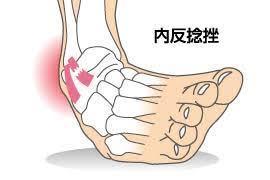 足関節捻挫の治療【テーピング固定】