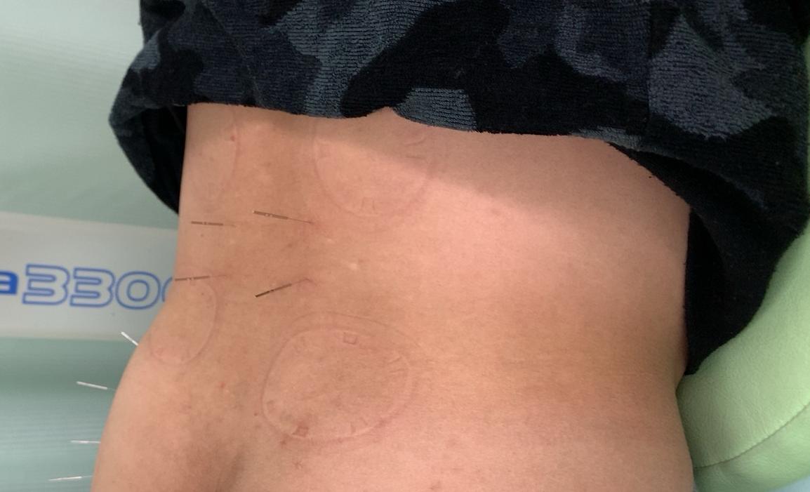 坐骨神経痛の鍼治療